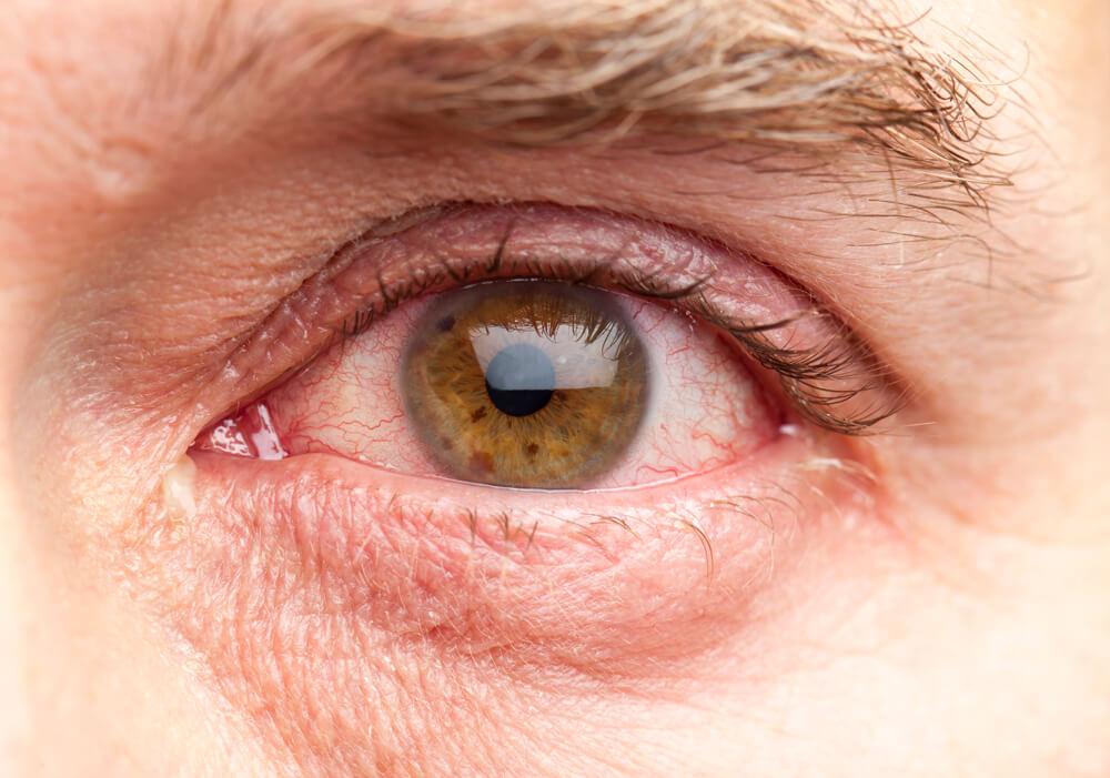 Фото заболевание глаз у кур и их лечение с фото