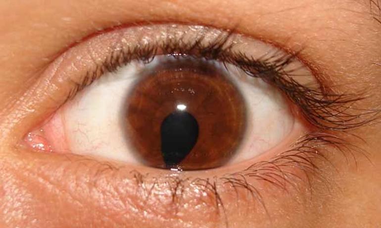 Болезни глаз у кур