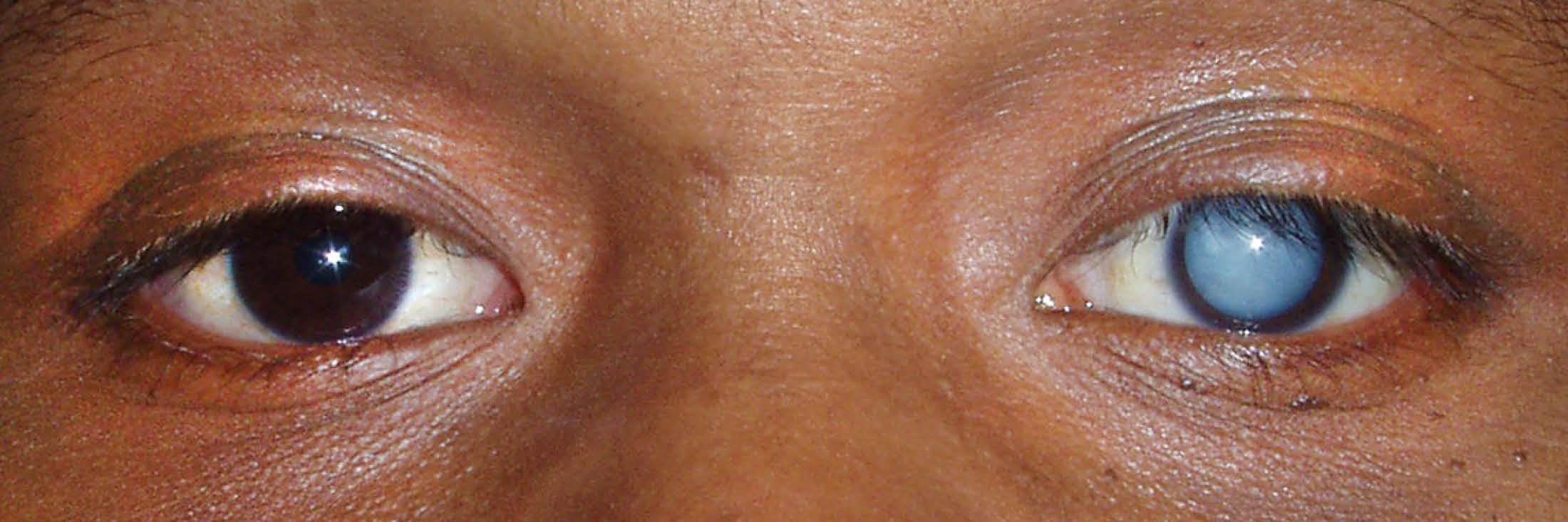 О болезнях глаз у курицы: что делать, если один глаз закрылся, как лечат слепоту |