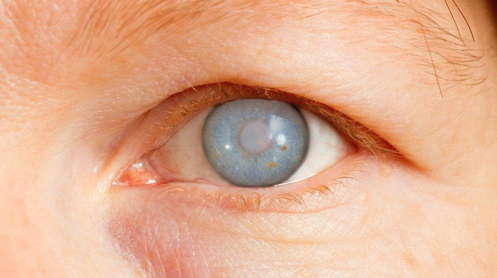 Болезни глаз у кур: закрываются и опухают, лечение