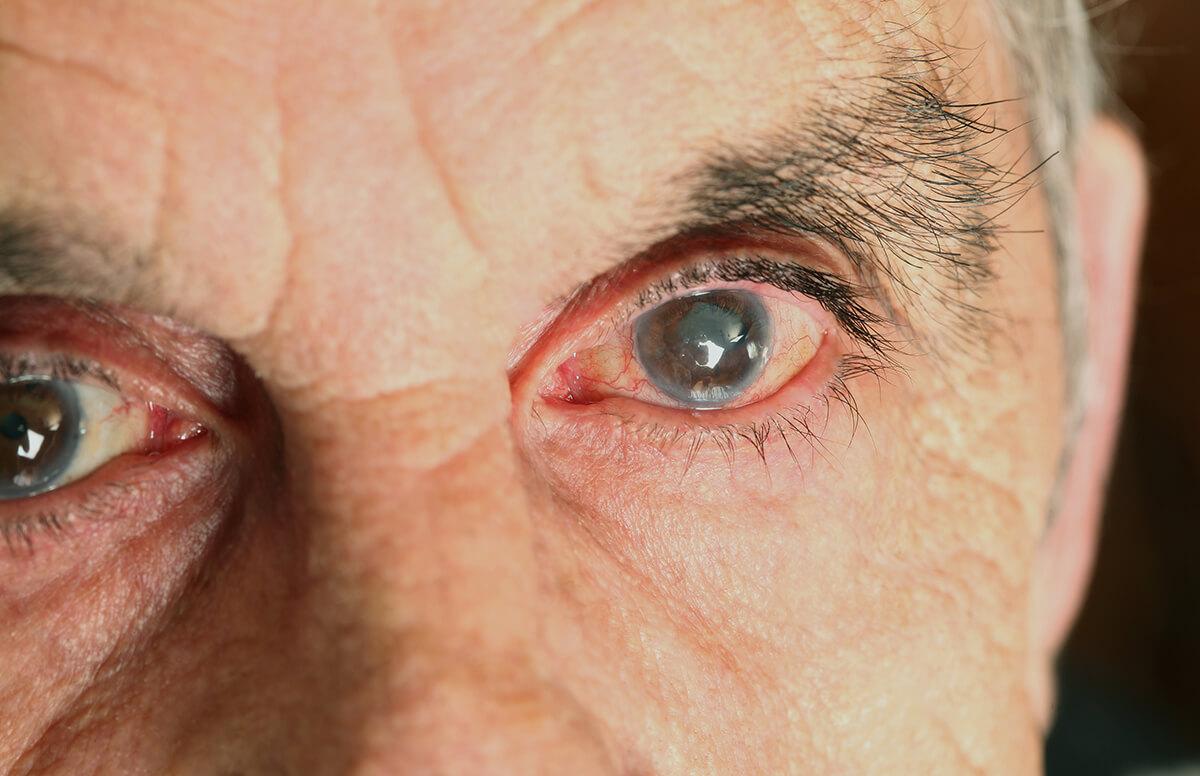 Заболевания глаз у домашних кур и их лечение